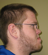 facial-profile-b.jpg