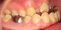 intraoral-right.jpg