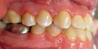 intraoral-right-a.jpg